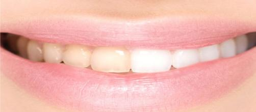 There are several home remedies to whiten teeth/Photo via Freepik.