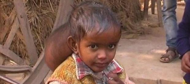 Menina na Índia tinha um tumor do tamanho de uma bola de futebol na cabeça