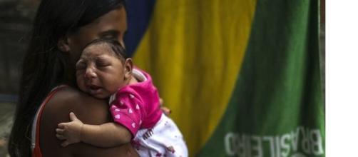 Microcefalia :effetto del virus Zika.