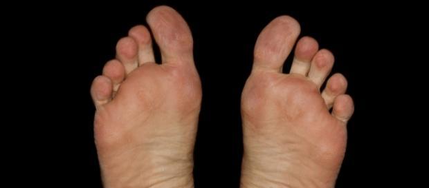 Saúde e bem estar podem começar com pés saudáveis