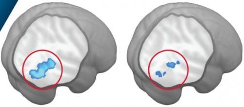 Il circuito della percezione sociale nei bimbi autistici (destra) e non (sinistra) (Credit: Washington University)
