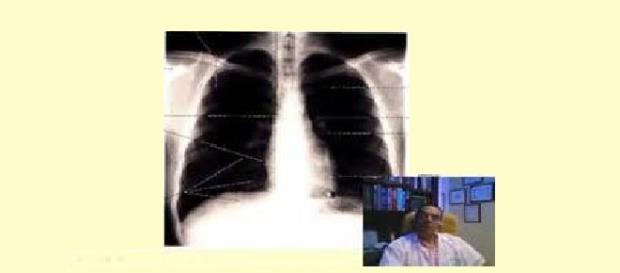 De que trata la embolia pulmonar