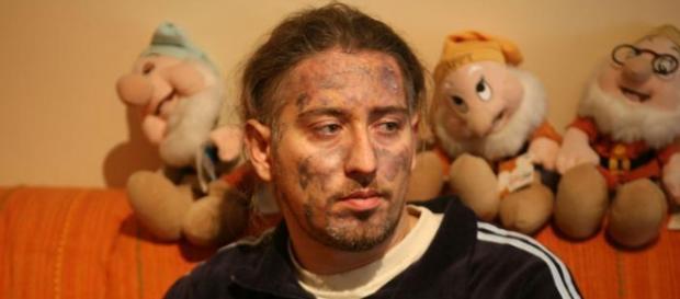 Antonio Boccuzzi sopravvissuto al rogo della Thyssen