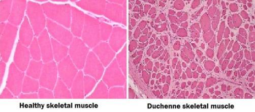 Tessuto muscolare sano (a sinistra) e affetto da distrofia di Duchenne (a destra)