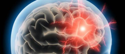 Apesar de ser considerada uma doença leve, a enxaqueca pode comprometer a estrutura cerebral