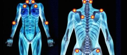 Tender points, siti muscolari per palpare il dolore.