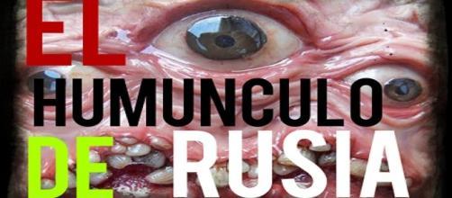 Un ruso crea un homúnculo a partir de su propio semen