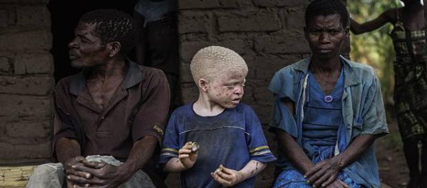Gli albini in Africa vengono uccisi sistematicamente