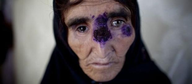 Mulher sendo tratada de leishmaniose em Cabul, Afeganistão