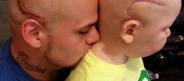 Josh de 28 anos, tatuou a cicatriz para apoiar o seu filho com câncer raro no cérebro.