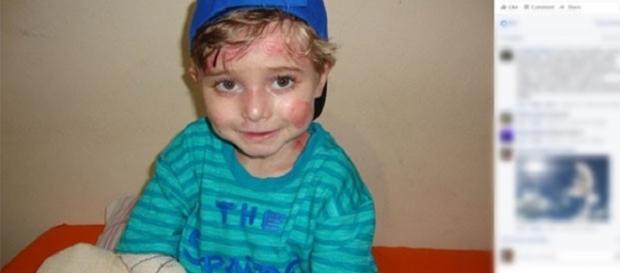 Campanha ajude o Lucas Costa, portador de Epidermólise Bolhosa