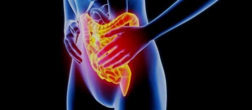 L'esclusione degli alimenti FODMAP apporta benefici alle malattie infiammatorie intestinali.
