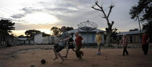 Los niños albinos corren peligro en Malawi