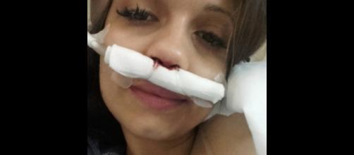 Débora Picoito foi operada aos adenoides