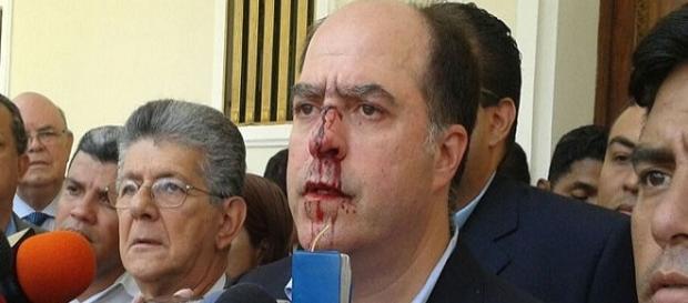 El Diputado Julio Borges resulto herido a las afueras del CNE