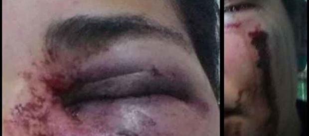 Mayra foi agredida com dois socos por simpatizante de Bolsonaro