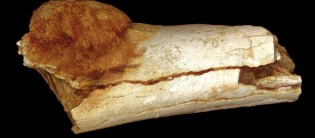 1.7 million-year-old cancer found, the oldest yet | Colorado ... - gazette.com
