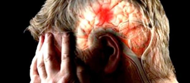 Conoces los síntomas de un derrame cerebral?
