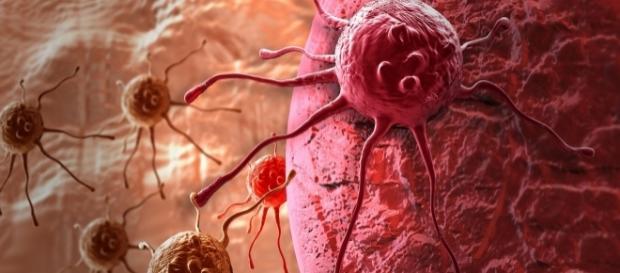 Novo tratamento mata células cancerígenas em apenas duas horas de terapia