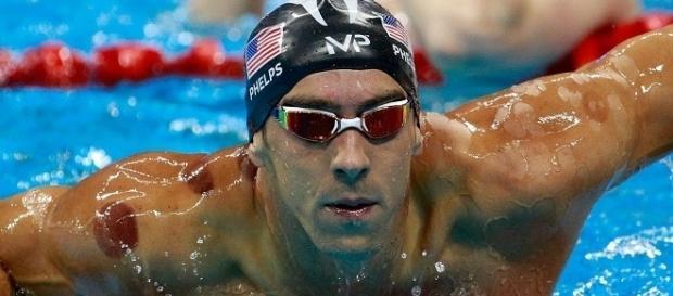 Descubra o que são as manchas vermelhas no corpo do nadador Michael Phelps.