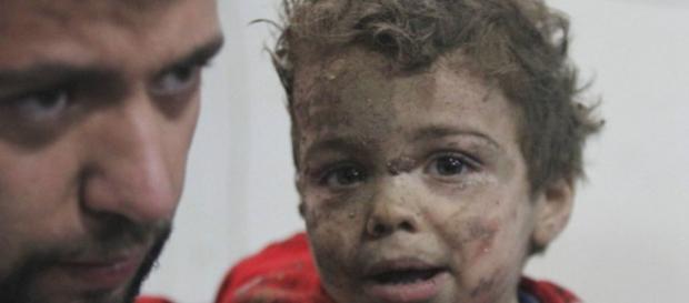 As crianças da Síria são as que mais sofrem na guerra civil que arrasou o país