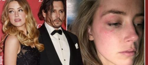 Amber Heard divulgou foto de seu rosto após suposta agressão