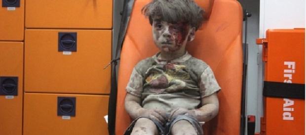 Foto do garoto ensaguentado comove o mundo