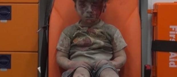 Imagem de criança ensanguentada choca o mundo