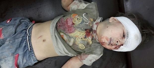 Menino de 5 anos se torna símbolo da guerra na Síria