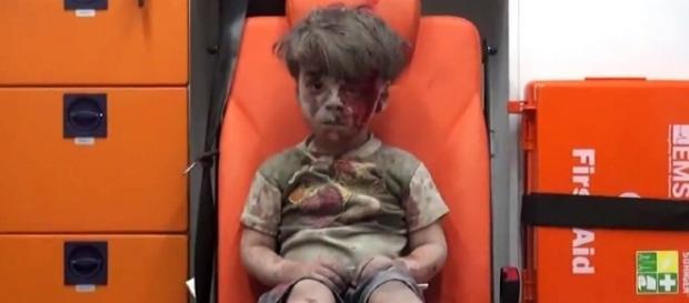 Morre irmão de menino sírio que comoveu o mundo