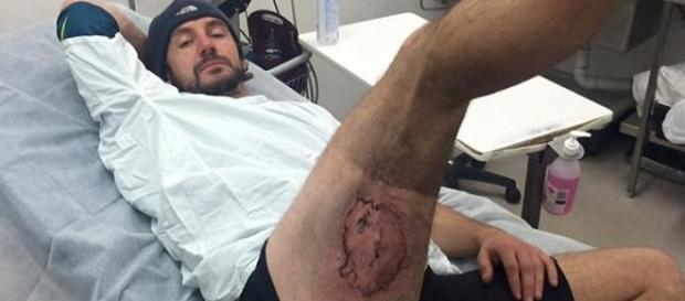 El ciclista australiano con las quemaduras de tercer grado en la pierna derecha