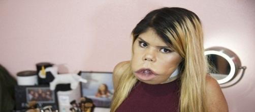 Marimar tem uma condição rara de saúde, apesar disso, dá uma aula de autoestima