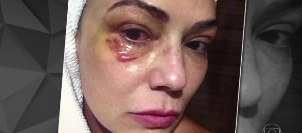 - Luiza Brunet recebe ofensas em seu instagran