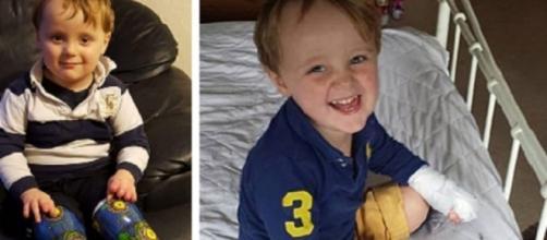 Reuben, il bimbo di tre anni amputato delle gambe per errore medico