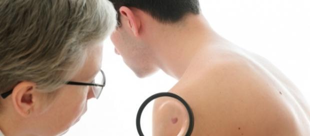 melanoma-benigno-maligno-test-1024×682 | Mediskope - mediskope.com