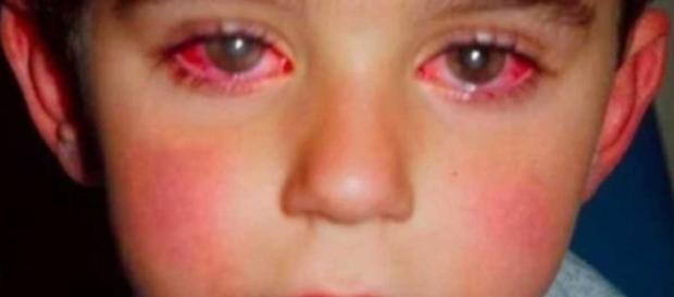 Un niño australiano perdió el 75% de su visión por culpa de este ... - upsocl.com