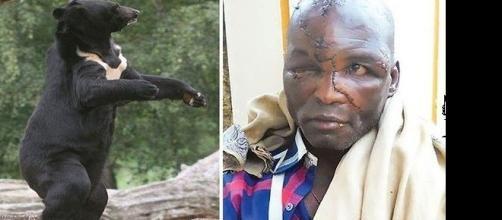 Imagens de indiano atacado por urso enquanto trabalhava em sua propriedade.
