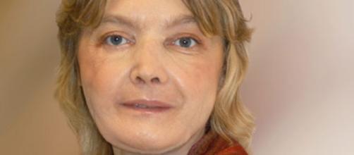 Isabelle Dinoire: la prima donna a ricevere un trapianto di faccia
