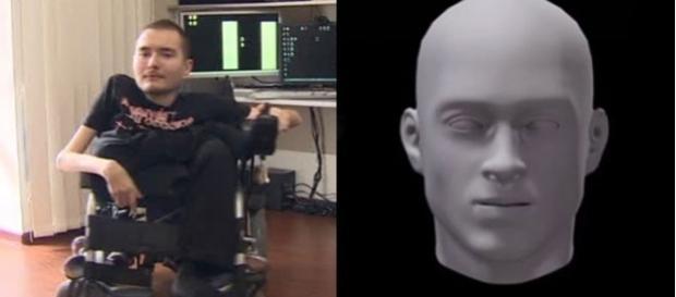 Valery Spiridonov, din Rusia, s-a oferit să fie primul om căruia să i se facă un transplant de cap