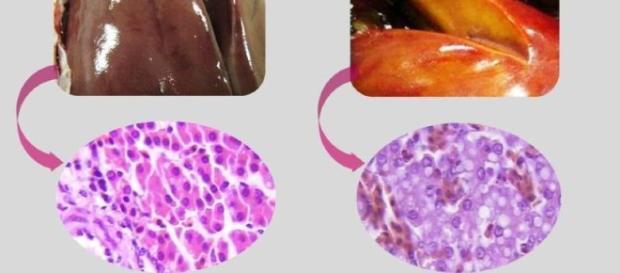 Síndrome del hígado graso, SHG en gallinas de postura | www ... - tecnovit.net
