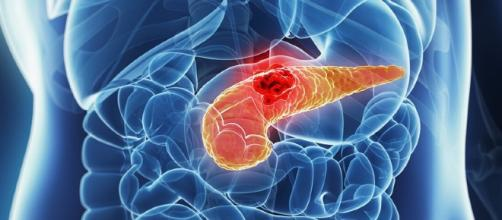 Liposomal Irinotecan Boosts Survival in Pancreatic Cancer - medscape.com