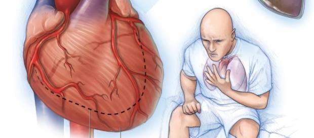 Centro de Salud Profesor Jesús Marín: Insuficiencia cardiaca ... - csjesusmarin.es