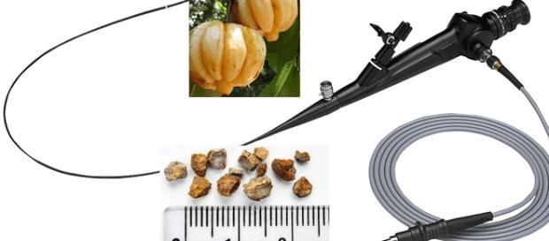 Les calculs sont généralement de taille réduite... La garcinia est un fruit à écorce