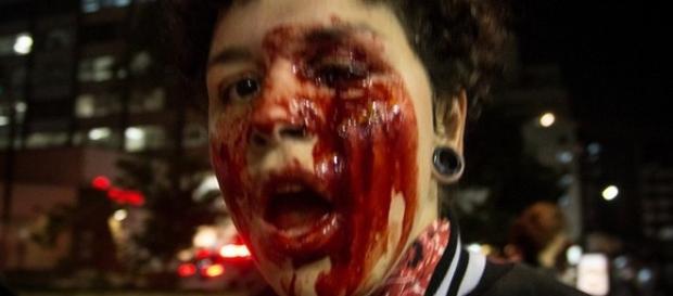 Manifestante supostamente atingida por bomba da polícia ficou cega.
