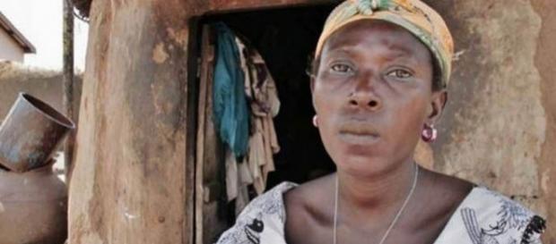 Asana a fost acuzată că este vrăjitoare de fostul ei soţ care a turnat plastic topit peste ea - Foto: VICKY MARKOLEFA/ACTIONAID