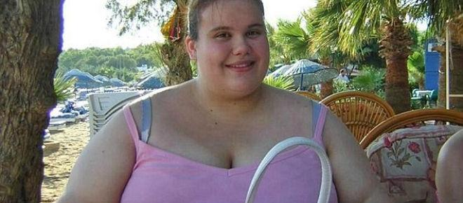 Mulher obesa fica obcecada com excesso de peso e desenvolve anorexia