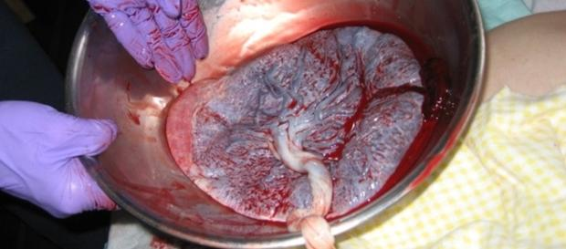 Placenta   Foto simulação   Reprodução