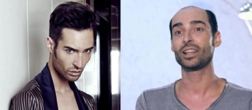 GH17 ¡CONFIRMADO!: ¡Miguel NO es calvo!