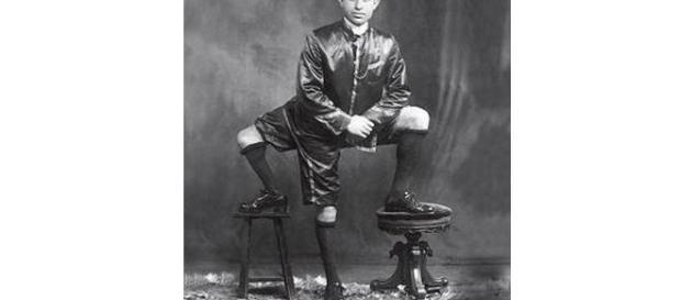Francesco Lentini, il siciliano con tre gambe