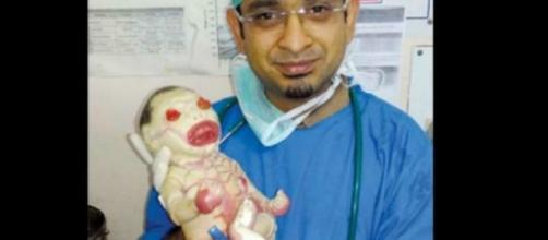 Médico indiano com bebê portador da enfermidade